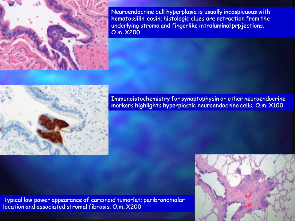 Neuroendocrine cell hyperplasia is usually incospicuous with hematossilin-eosin; histologic clues are retraction from the underlying stroma and fingerlike intraluminal prpjections.