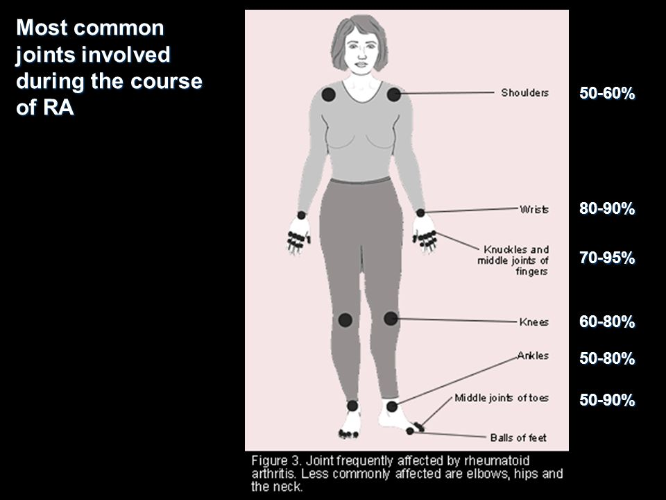 Most common joints involved during the course of RA