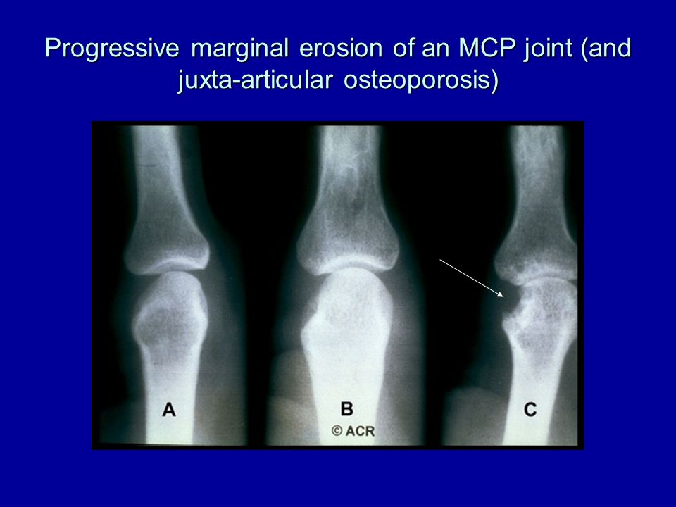 Progressive marginal erosion of an MCP joint (and juxta-articular osteoporosis)
