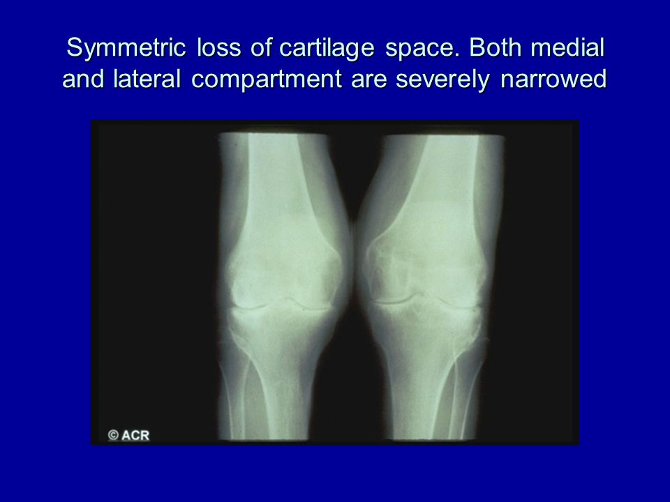 Symmetric loss of cartilage space
