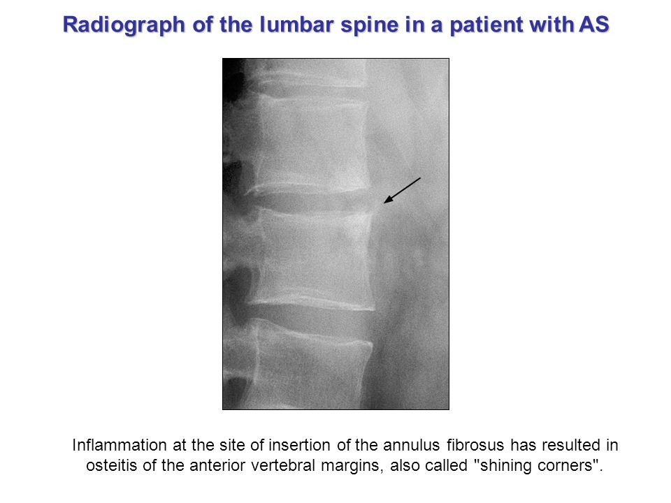 Radiograph of the lumbar spine in a patient with AS