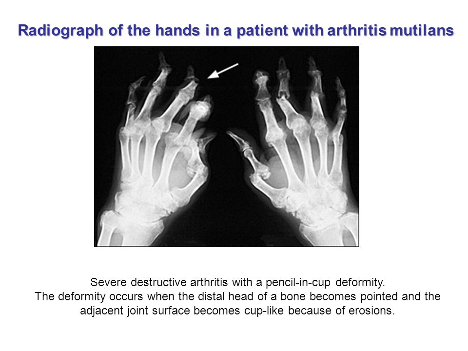 Severe destructive arthritis with a pencil-in-cup deformity.