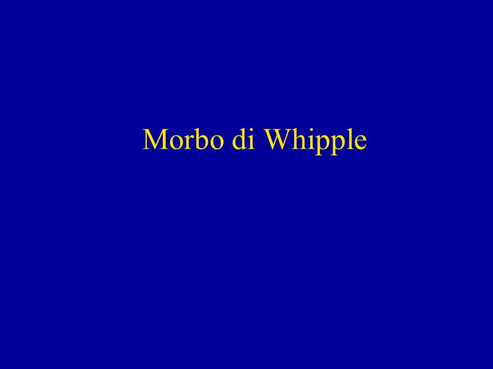 Morbo di Whipple
