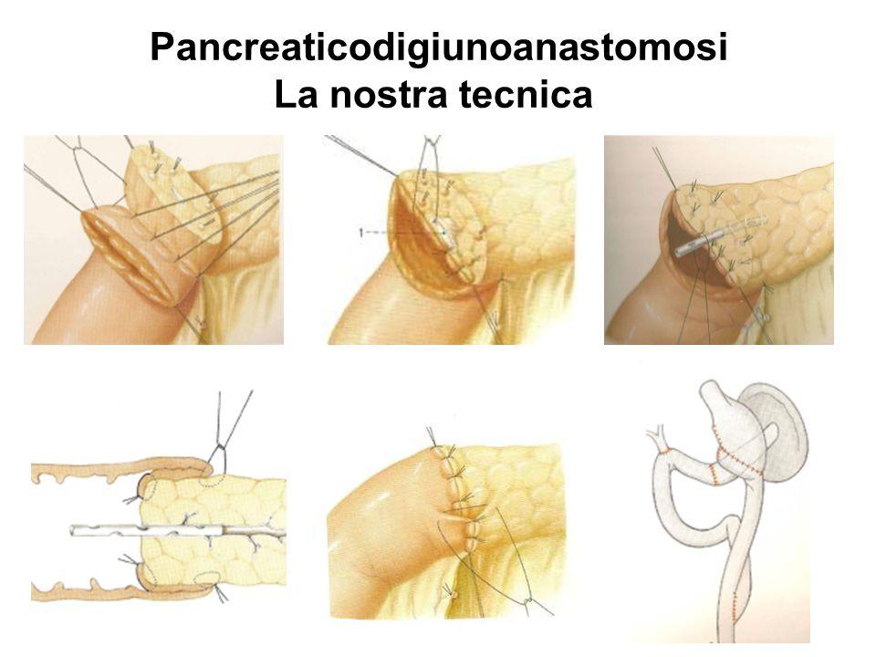 Pancreaticodigiunoanastomosi