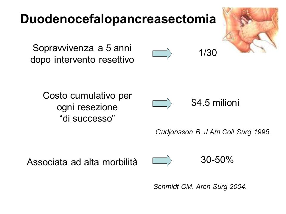 Duodenocefalopancreasectomia