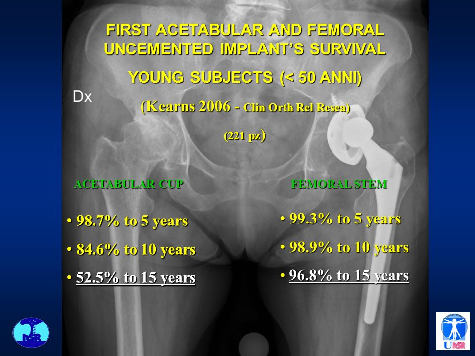 FIRST ACETABULAR AND FEMORAL UNCEMENTED IMPLANT'S SURVIVAL