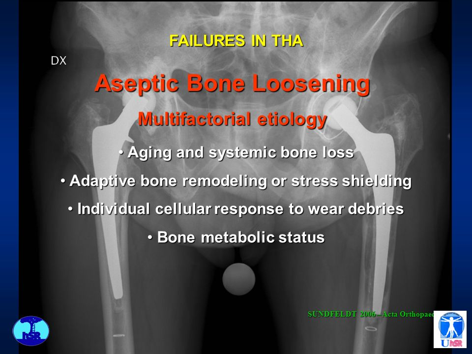 Aseptic Bone Loosening