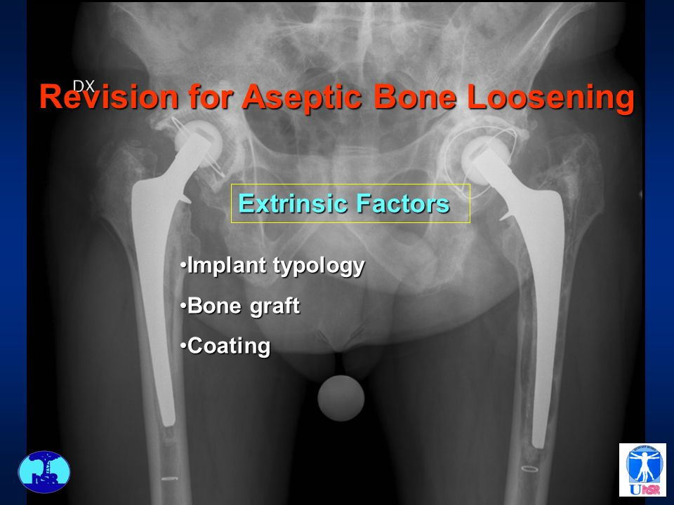 Revision for Aseptic Bone Loosening