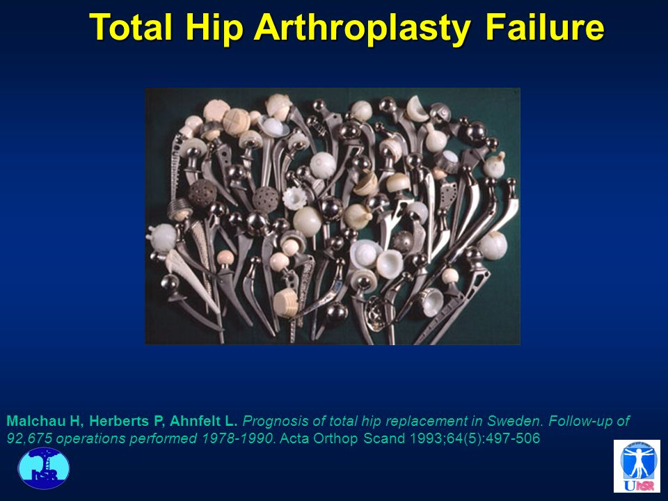 Total Hip Arthroplasty Failure