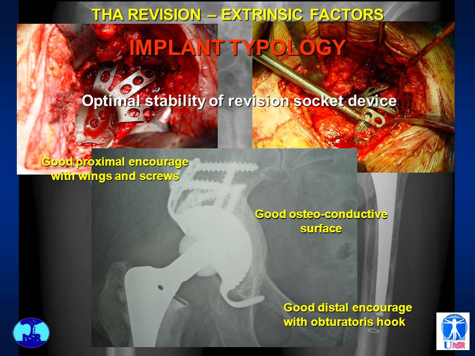 THA REVISION – EXTRINSIC FACTORS