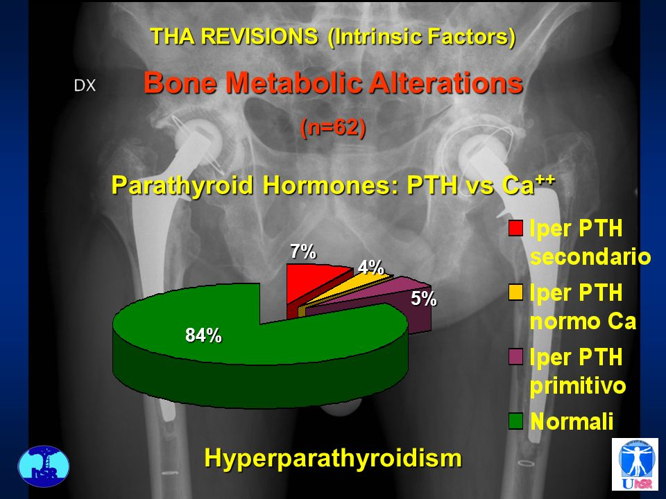 THA REVISIONS (Intrinsic Factors) Bone Metabolic Alterations
