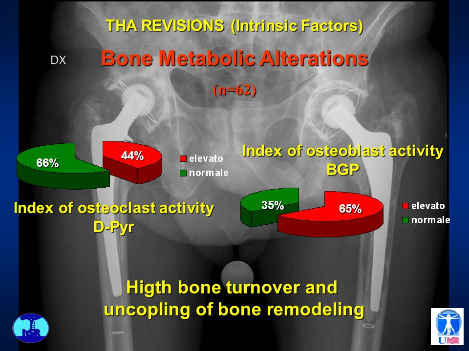 Bone Metabolic Alterations