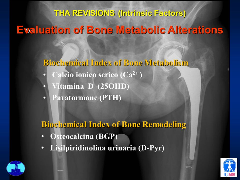 Evaluation of Bone Metabolic Alterations