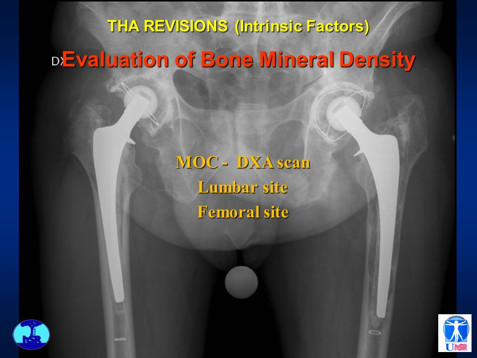 THA REVISIONS (Intrinsic Factors) Evaluation of Bone Mineral Density