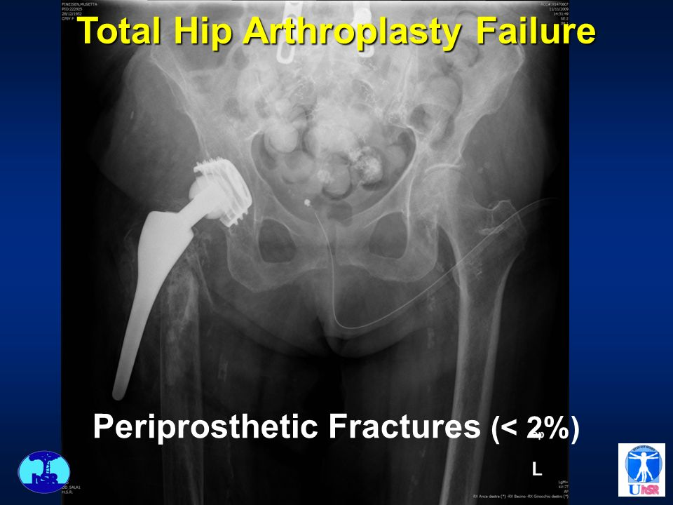 Total Hip Arthroplasty Failure Periprosthetic Fractures (< 2%)