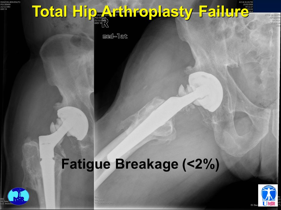 Total Hip Arthroplasty Failure Fatigue Breakage (<2%)