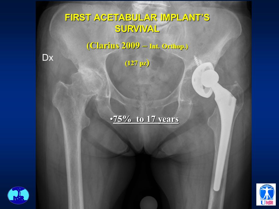 FIRST ACETABULAR IMPLANT'S SURVIVAL