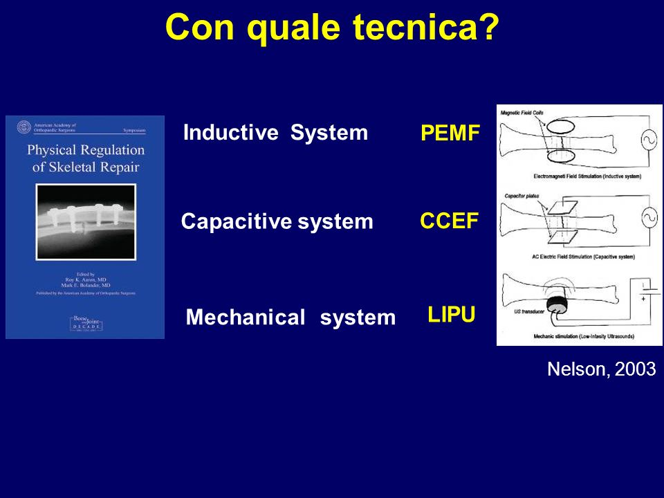 Con quale tecnica Inductive System Mechanical system
