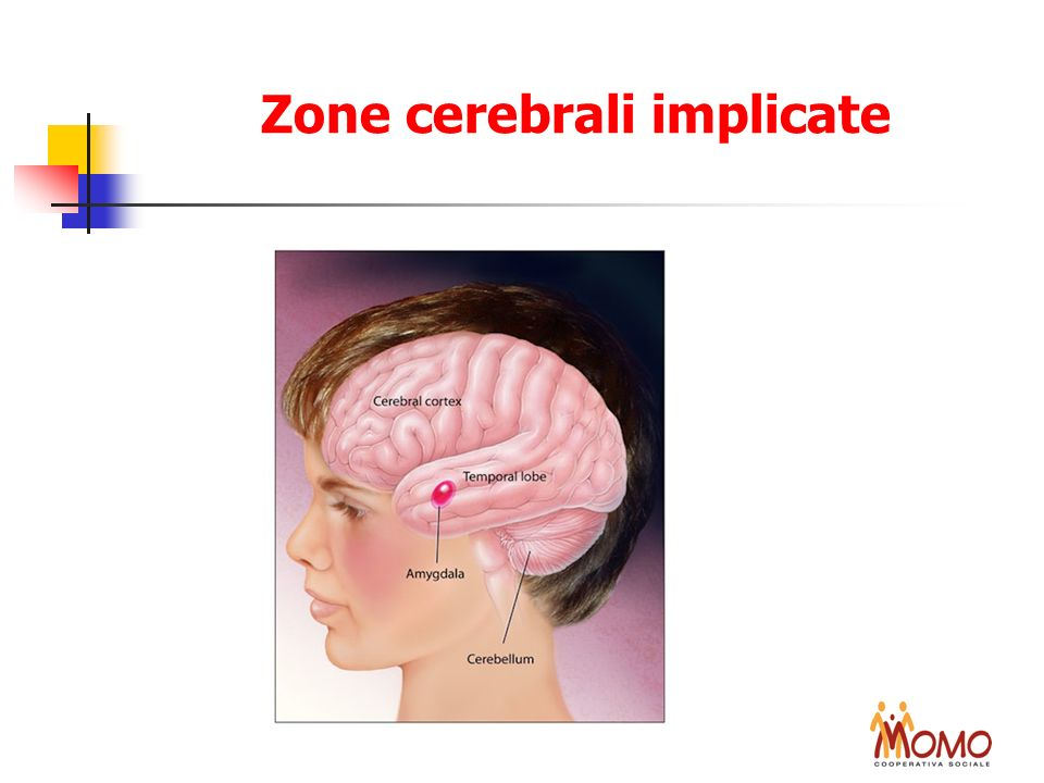 Zone cerebrali implicate