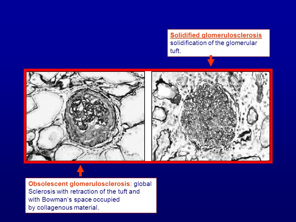 Solidified glomerulosclerosis: