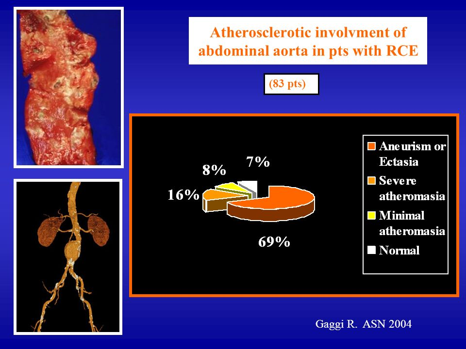 Atherosclerotic involvment of abdominal aorta in pts with RCE
