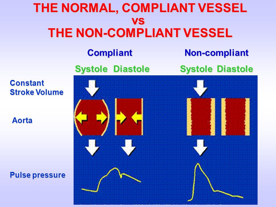 THE NORMAL, COMPLIANT VESSEL THE NON-COMPLIANT VESSEL