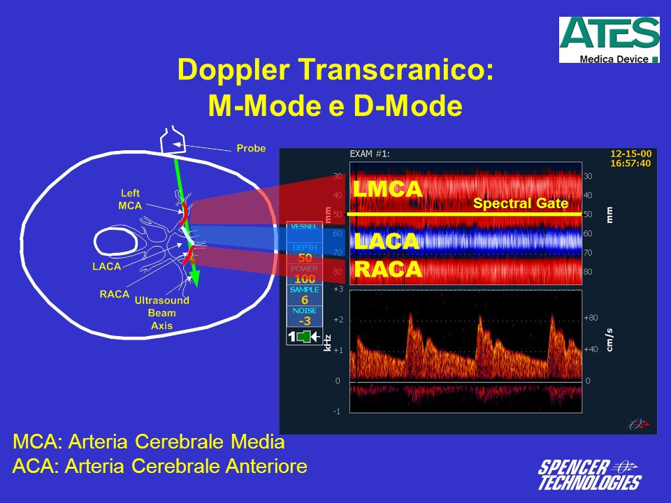 Doppler Transcranico: