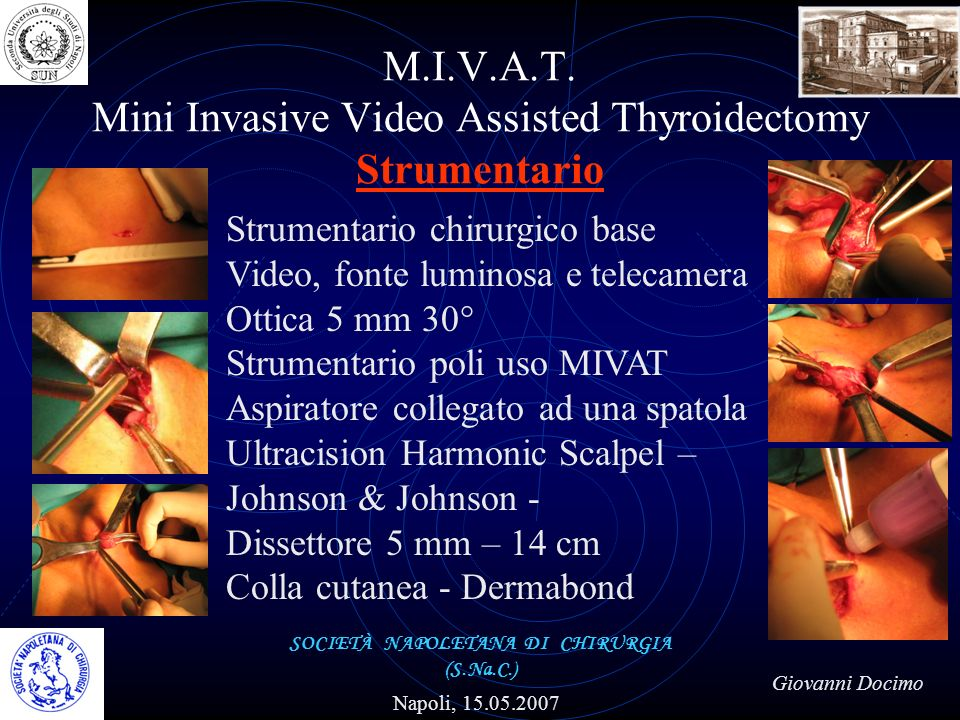 M.I.V.A.T. Mini Invasive Video Assisted Thyroidectomy Strumentario