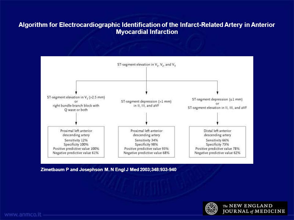 Algorithm for Electrocardiographic Identification of the Infarct-Related Artery in Anterior Myocardial Infarction