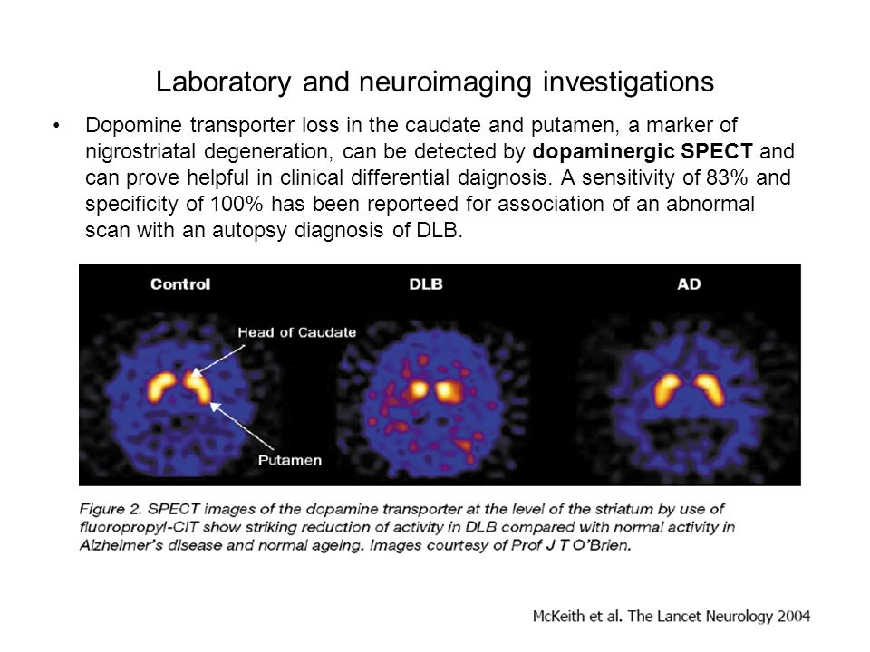 Laboratory and neuroimaging investigations