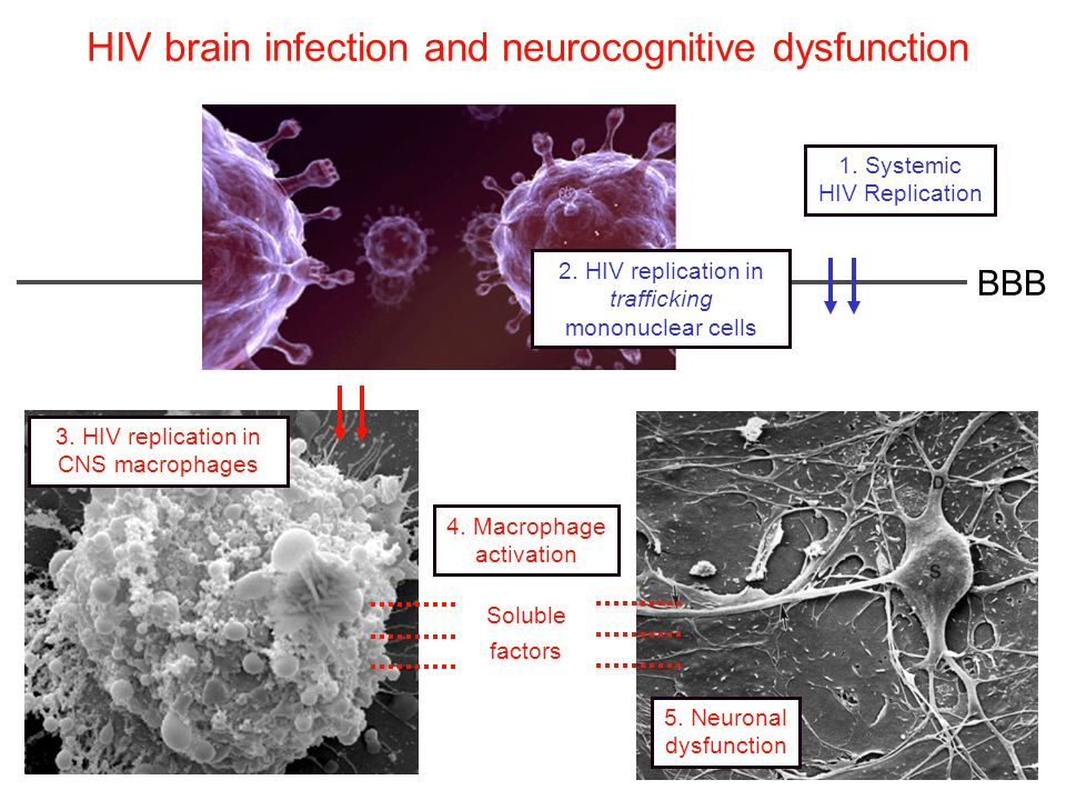HIV brain infection and neurocognitive dysfunction