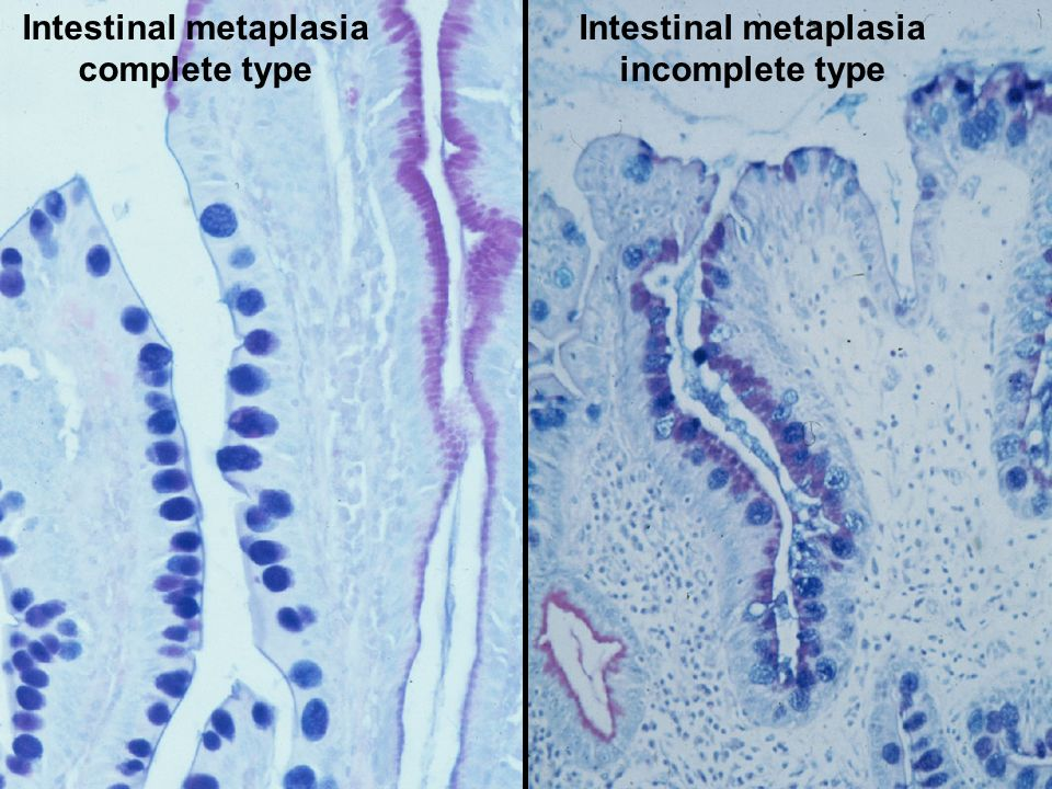 Intestinal metaplasia Intestinal metaplasia