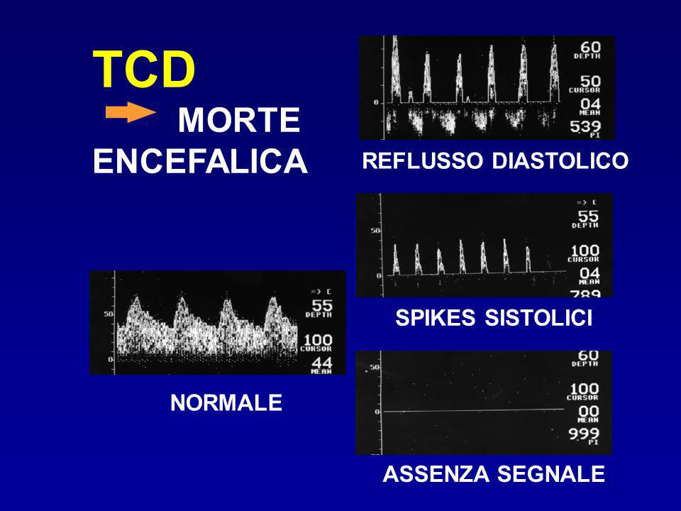 TCD MORTE ENCEFALICA REFLUSSO DIASTOLICO SPIKES SISTOLICI NORMALE