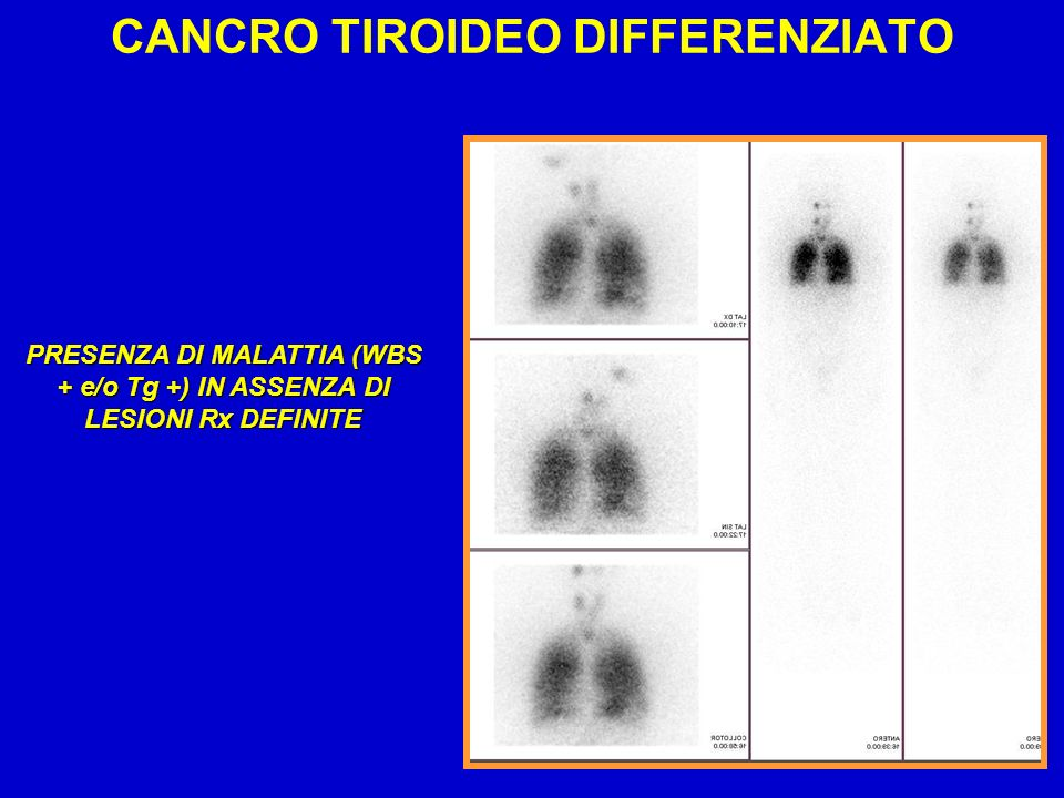 CANCRO TIROIDEO DIFFERENZIATO