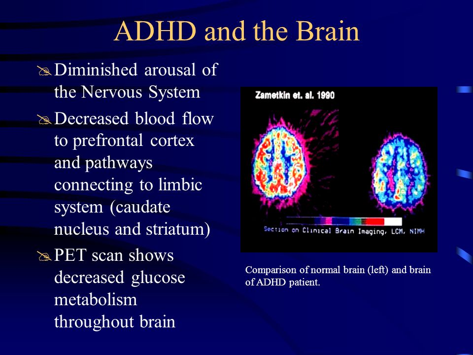 ADHD and the Brain Diminished arousal of the Nervous System