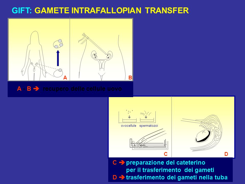 GIFT: GAMETE INTRAFALLOPIAN TRANSFER
