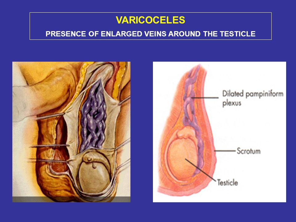 PRESENCE OF ENLARGED VEINS AROUND THE TESTICLE