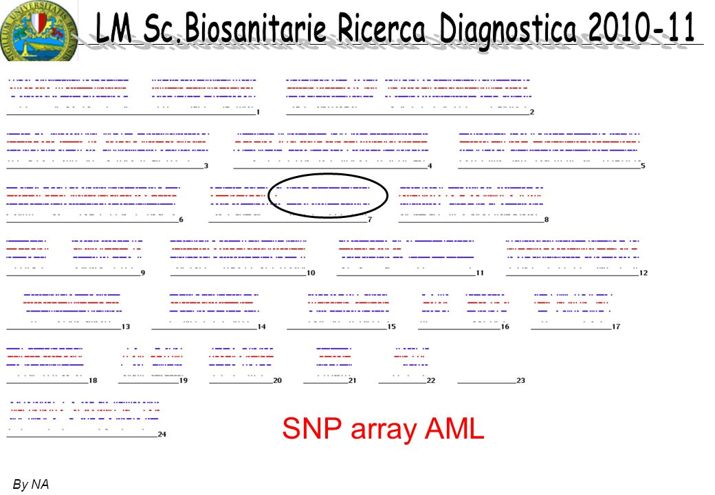 SNP array AML By NA 45