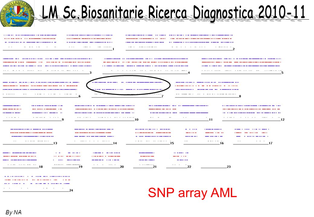 SNP array AML By NA 46