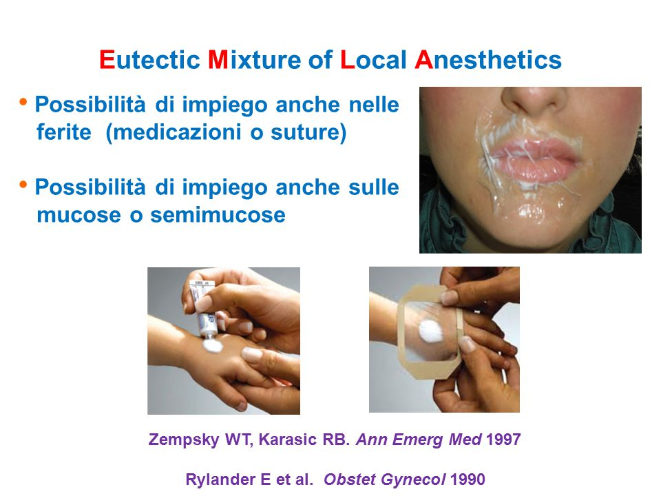 Eutectic Mixture of Local Anesthetics