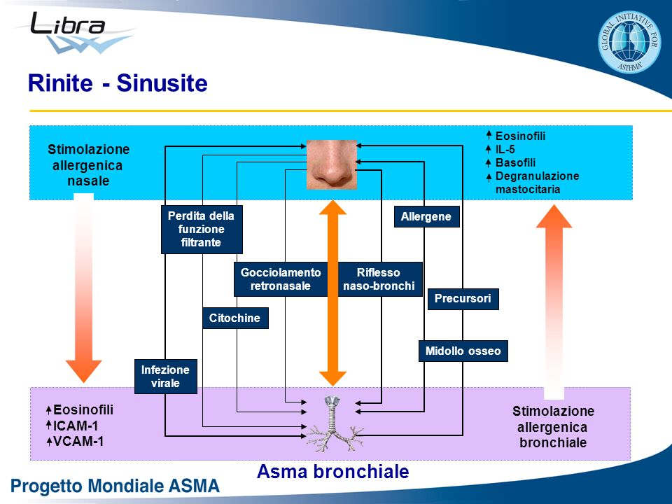 Rinite - Sinusite Asma bronchiale Stimolazione allergenica nasale