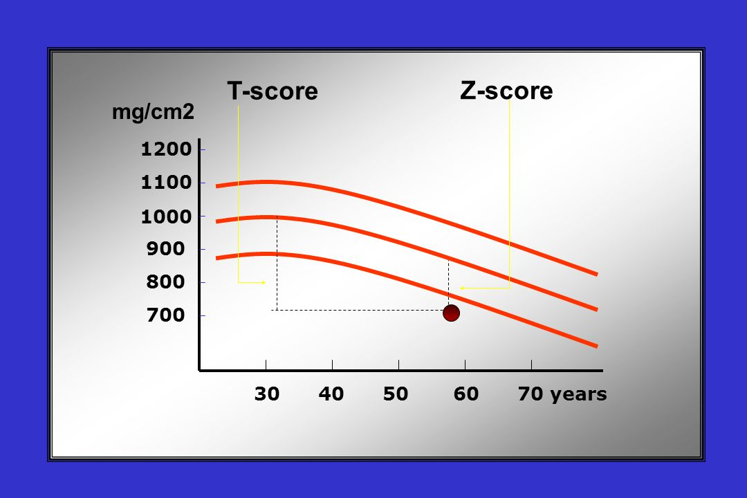 T-score Z-score mg/cm2 1200 1100 1000 900 800 700 30 40 50 60 70 years
