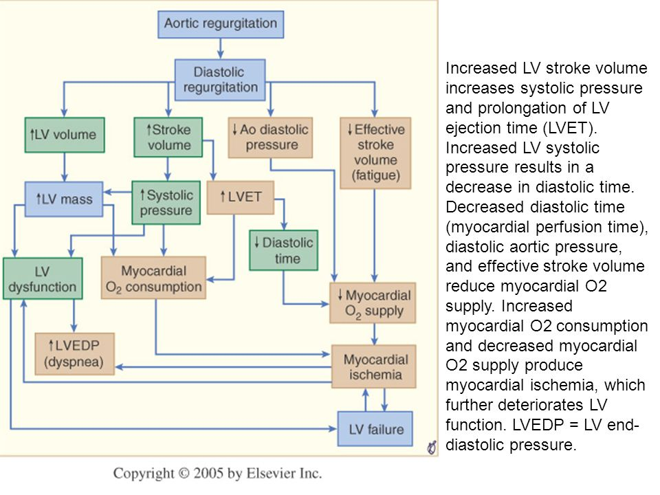 Increased LV stroke volume increases systolic pressure and prolongation of LV ejection time (LVET).