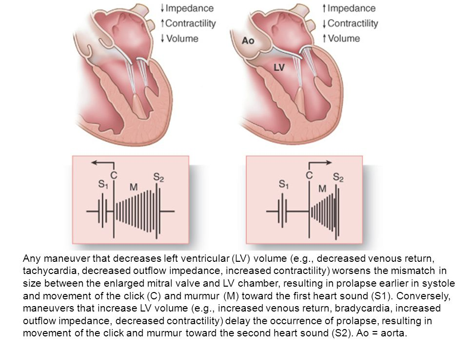 Any maneuver that decreases left ventricular (LV) volume (e. g