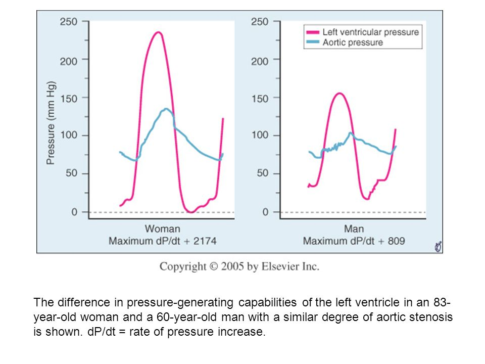 The difference in pressure-generating capabilities of the left ventricle in an 83-year-old woman and a 60-year-old man with a similar degree of aortic stenosis is shown.