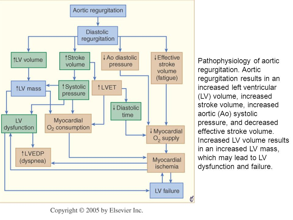 Pathophysiology of aortic regurgitation