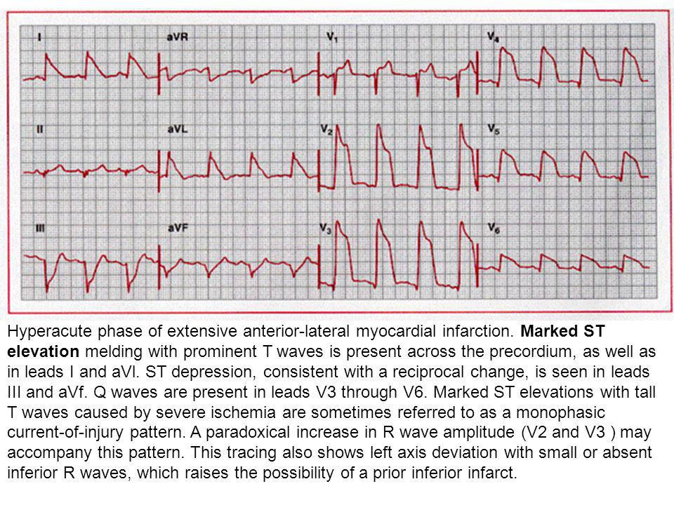Hyperacute phase of extensive anterior-lateral myocardial infarction