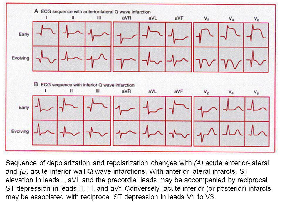 Sequence of depolarization and repolarization changes with (A) acute anterior-lateral and (B) acute inferior wall Q wave infarctions.