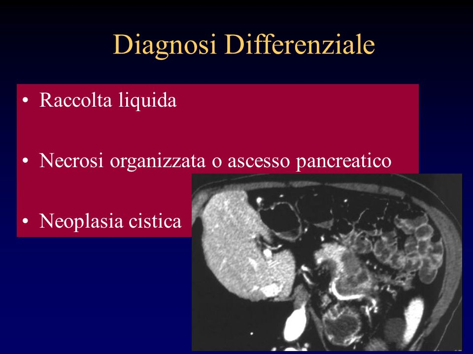 Diagnosi Differenziale
