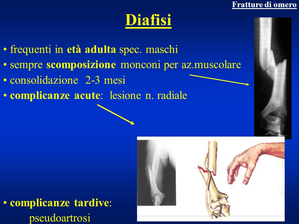 Diafisi frequenti in età adulta spec. maschi